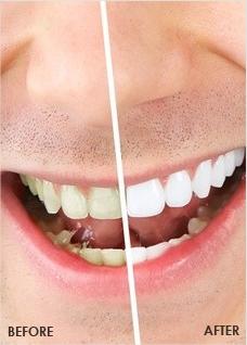 Teeth Whitening Fresno Dentist Mankirat Gill Dds Aesthetic Edge